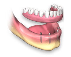 Ball retained denture