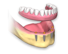 Locator retained denture