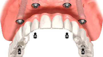 fixed implant supported dentures technique